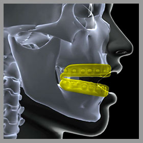 mouth guard for braces